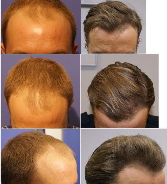 Восстановление волос с лореаль